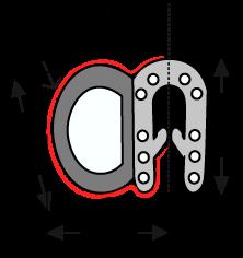 6595 Side clip-on shield